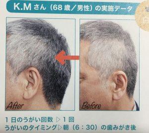 白髪がや薄毛が治る簡単な白ごまうがいのやり方