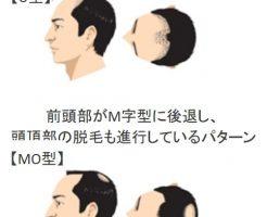 薄毛になりたくないなら薄毛対策は20歳から開始