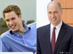 ウイリアム王子は薄毛より坊主頭が似合う