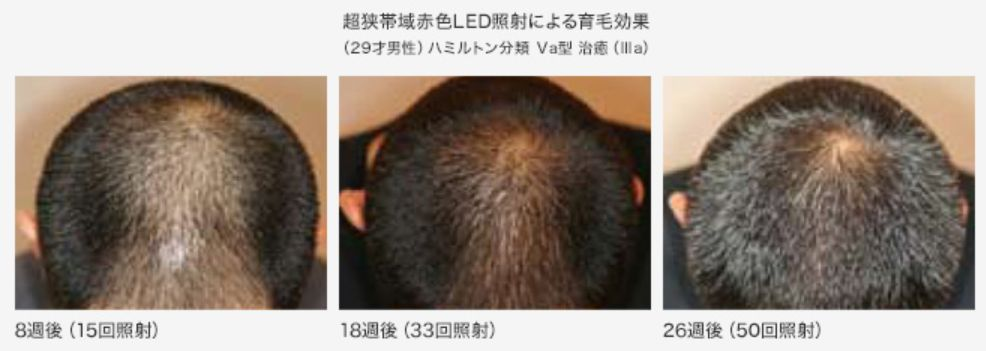 アデランスのヘアリプロの育毛効果は100%だったと報告された