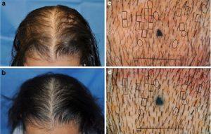 低出力レーザーとLEDのどちらが薄毛の治療に良いか