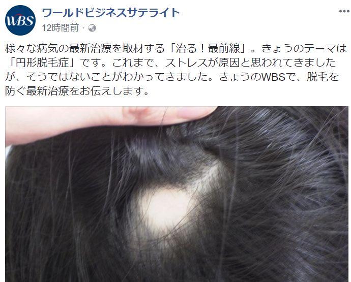 東京テレビでは最新の円形脱毛症の治し方を紹介