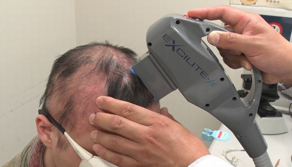 東京テレビで円形脱毛症の最新の治し方を放映