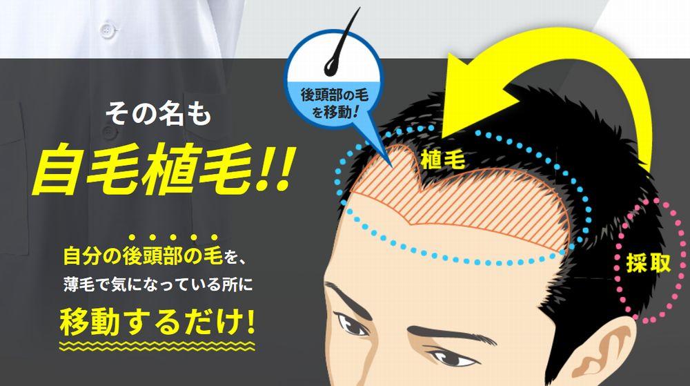 日本皮膚科学会の勧める自毛植毛は抜けてもまた生えてくる