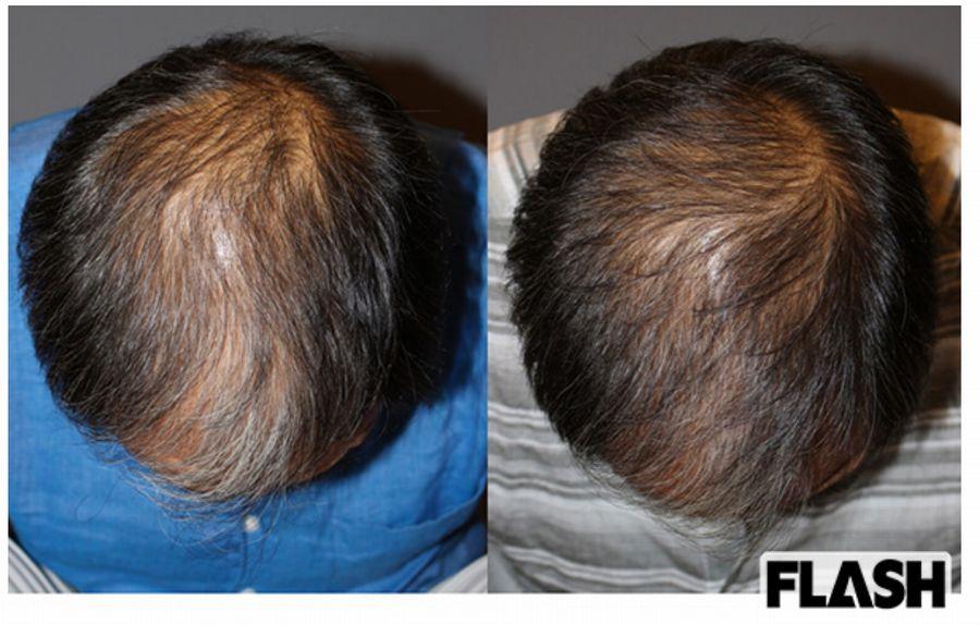 頭髪の再生医療なら安全なアヴェニューセルクリニックの薄毛治療