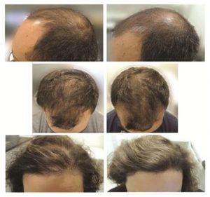 ノコギリヤシの育毛効果に関する科学的論文