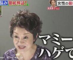 テレビでカツラ着用を告白したのは南美希子さん