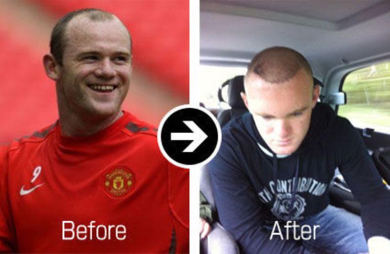 二度目の植毛手術は大成功のルーニー