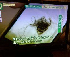 新型コロナの後遺症は休止期脱毛